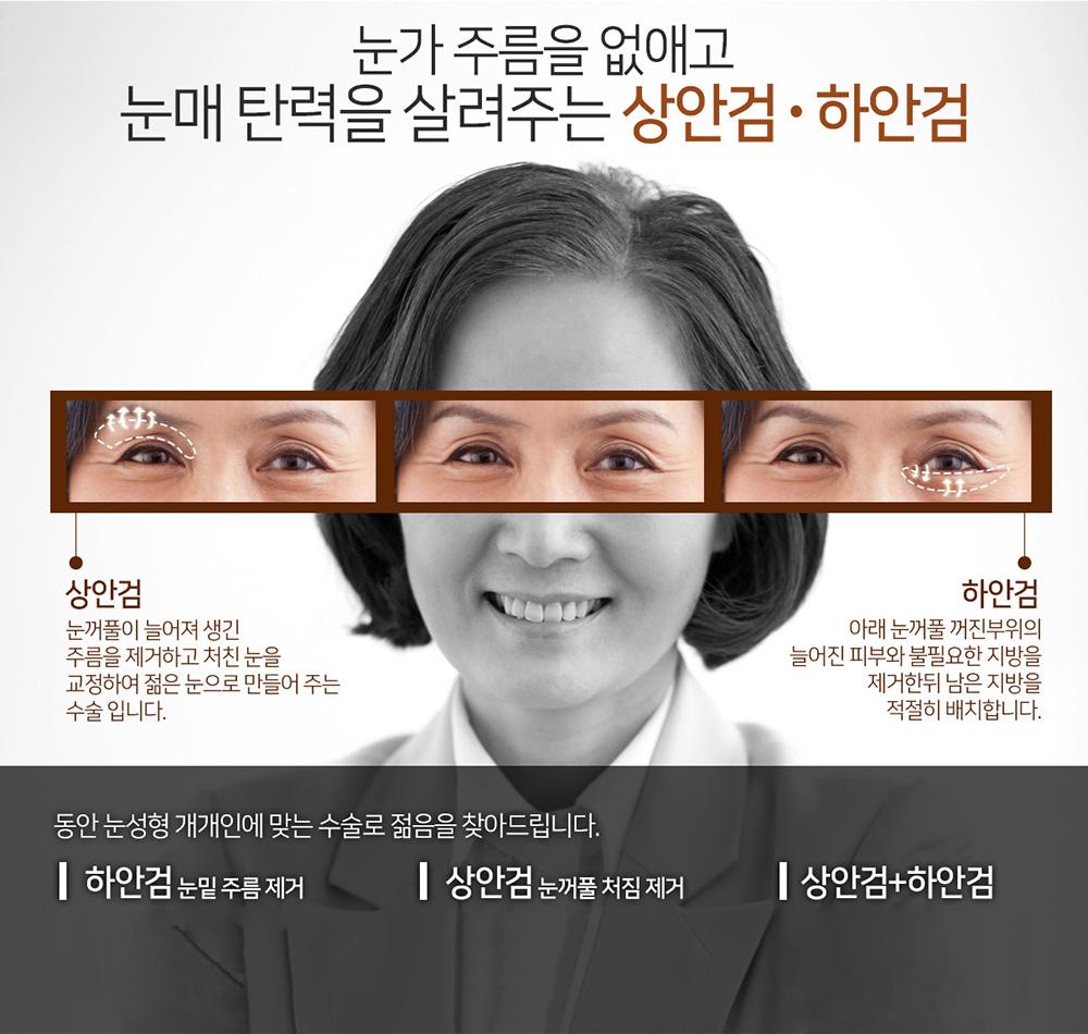 상안검하안검타이틀